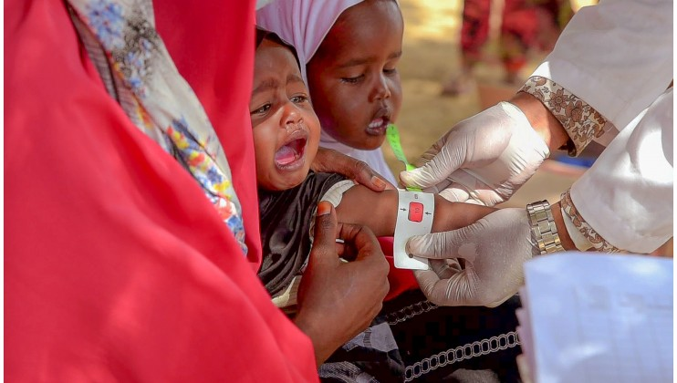 A 10 month old baby at Dalow village, in the Sahil region of Somaliland, assessed as severely malnourished